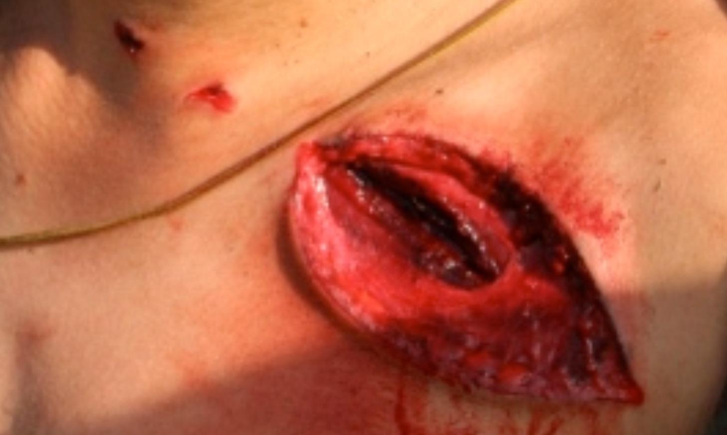 Final, bullet penetration gunshot wounds apologise, but